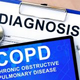 Hospice Care in Lakewood NJ: COPD And Hospice Care