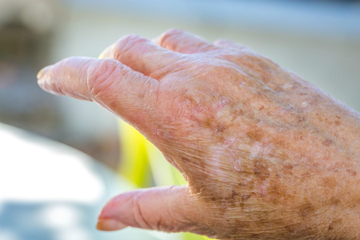LARGE-bigstock-Hands-Of-Old-Woman-With-Skin-P-150230321-1200x800.jpg